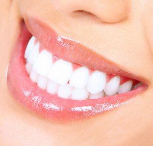 Invisalign - Stylish Teeth Straightening
